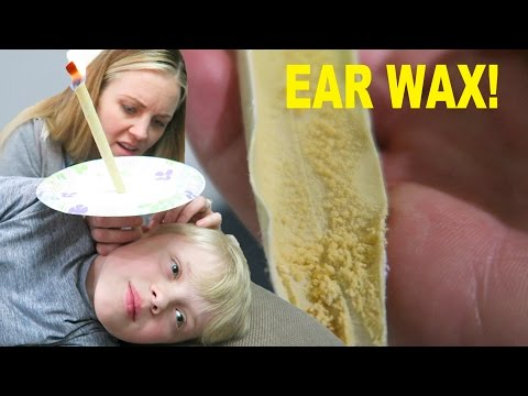 TONS OF NASTY EAR WAX REMOVED! WILL IT ALL COME OUT?