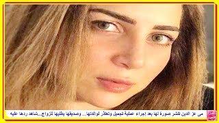 مى عز الدين تنشر صورة لها بعد إجراء عملية تجميل وتعتذر لوالدتها... وصديقها يطلبها للزواج وردها عليه