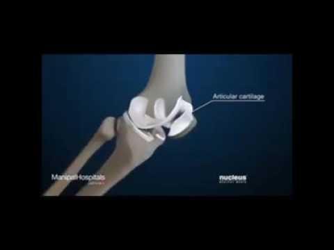 Knee Pain and loss of bones