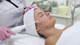 Saian Acne treatment using natural products and a high frequency machine