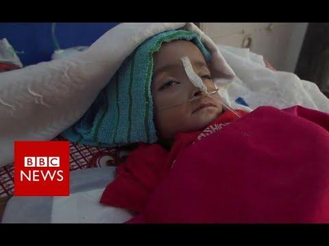 Yemen: The plight of the children – BBC News