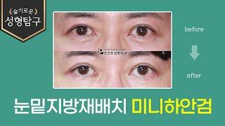 남자 눈밑지방재배치 미니하안검