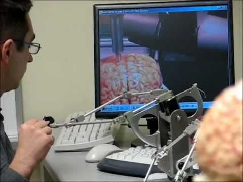 Simulated Haptic Telerobotic Brain Surgery