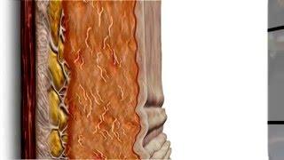 Ulthera ultrassom Microfocado