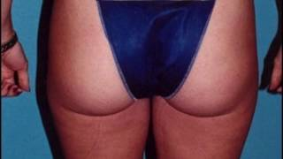 Hamilton Surgical Arts   Liposuction Case #83