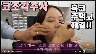 코조각주사 콧볼축소주사에 대하여^^(feat.신촌라마르…