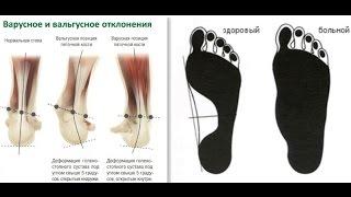 видео Лечение плоско-вальгусной деформации стопы у детей без операции и ортопедической обуви
