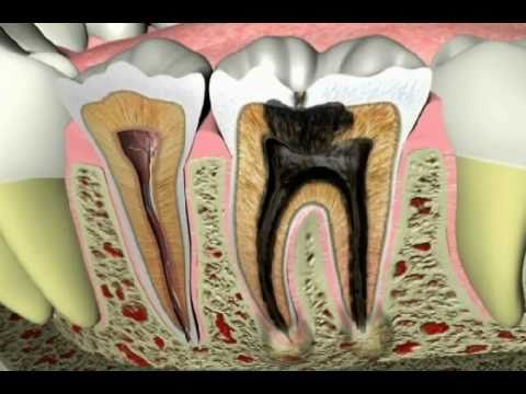 What Causes Tooth Pain and What's the Best Toothache Cure?