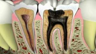 Endodontics - What Causes a Tooth Ache