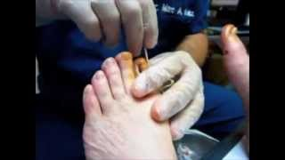 podiatrist cures ingrown toenail