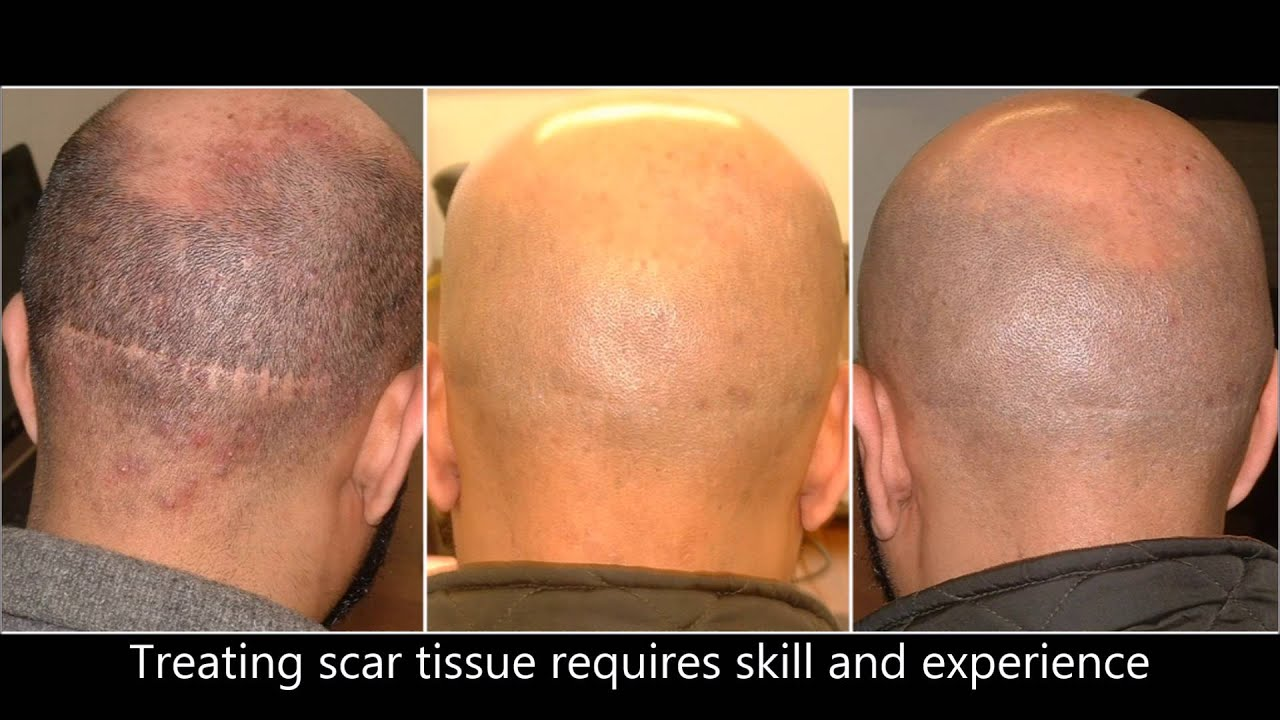 Hair Transplant Scar Repair With Vinci Hair Clinic Msp Youtube