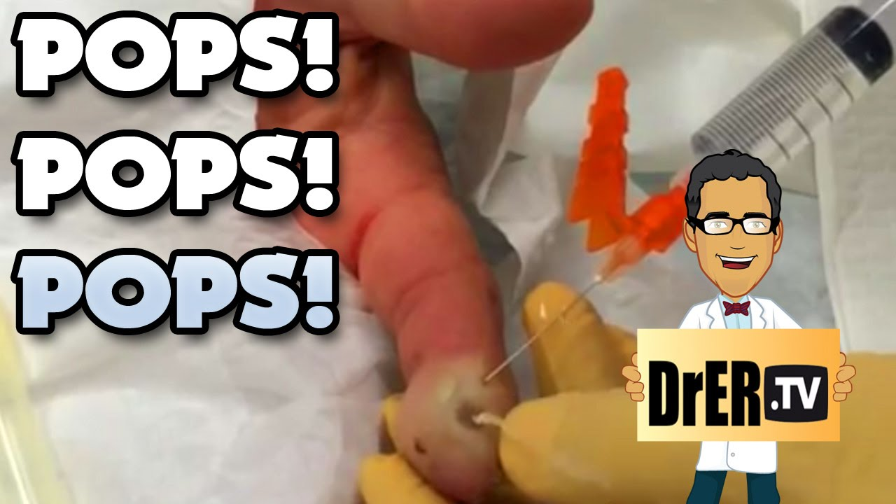 Popping Finger Felon! Zits, Pimples, Abscesses and Cysts