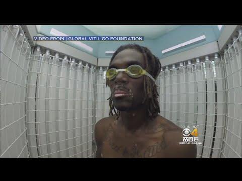 Doctor Says Vitiligo Can Be Treated