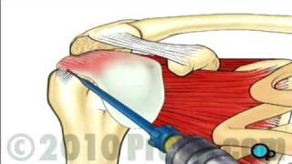 Rotator Cuff Repair - Arthroscopic Surgery