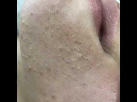 @lissacosmetolog: ультразвуковая эффективная чистка лица