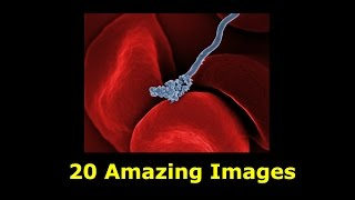 20 Amazing Scanning Electron Microscope Images (from cancer cells to HIV Virus)