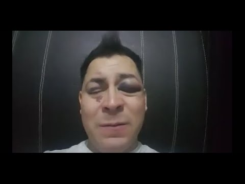 Golpean a Pako Medina locutor de #Multimedios #Reynosa