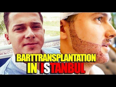 BARTTRANSPLANTATION IN ISTANBUL | VLOG | BARTMANN
