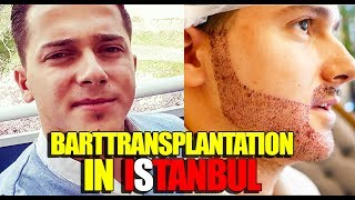 BARTTRANSPLANTATION IN ISTANBUL | VLOG | (+ENGLISH SUBTITLES)