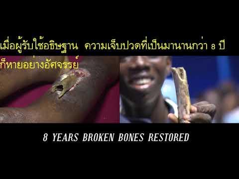 พระเจ้ารักษากระดูกขาหักเรื้อรังมา 8 ปีอย่างอัศจรรย์