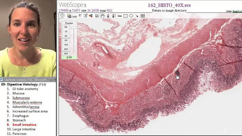 Digestive histology 9- Small intestine - YouTube
