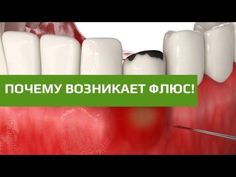 Что делать, если опухла щека, но зуб не болит