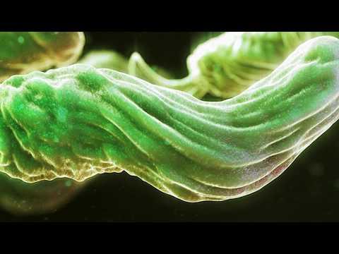 Если у вас изжога и вздутие. То у вас скорее всего эти бактерии. Изжога, что делать?