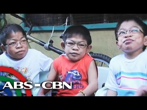Meet the siblings who have Hunter's Syndrome