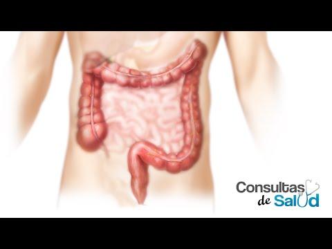 Cáncer de Colon y Recto | Consultas de salud