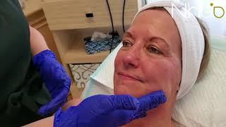 NHEO Plasmavit :cicatrices, rides et ridules, peau mature, terne et tachetée✔