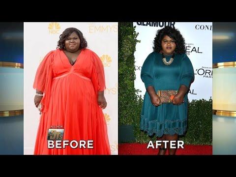 Gabourey Sidibe Reveals Weight Loss Surgery