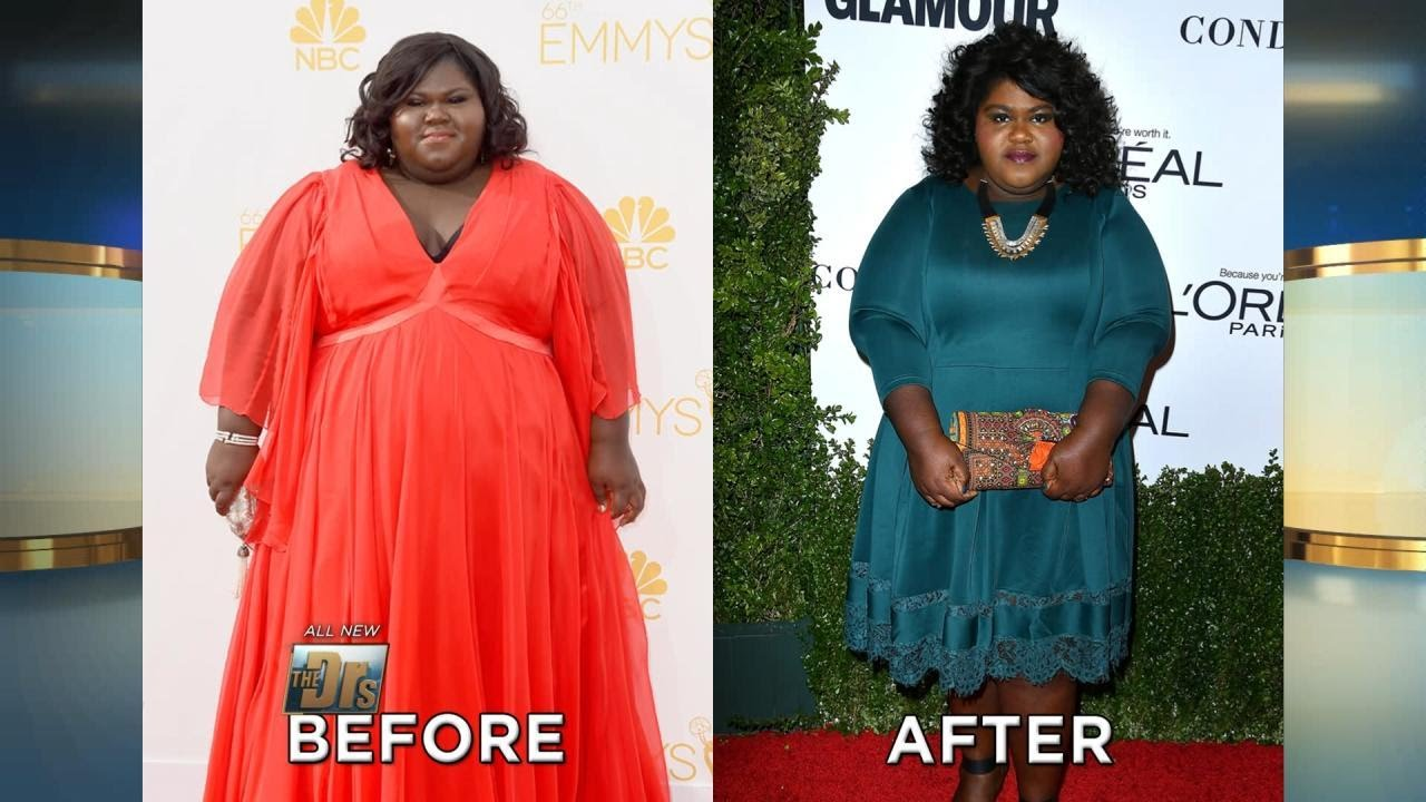 Gabourey Sidibe Reveals Weight Loss Surgery Youtube