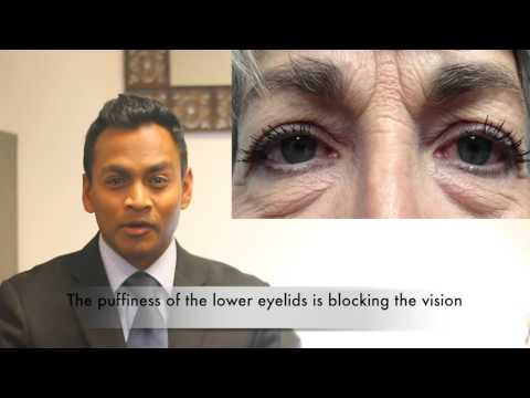 When does Insurance cover Cosmetic Eyelid Surgery or Blepharoplasty?