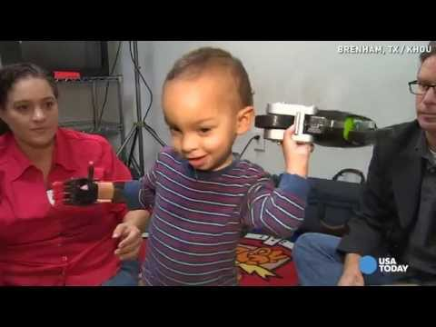 Watch what toddler does when he gets a new hand