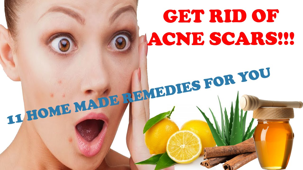 Home Remedies For Getting Rid Of Spots