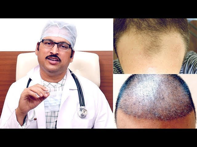 Simple Methods Hair Transplant || Is hair transplant successful? - Home Remedy Tips