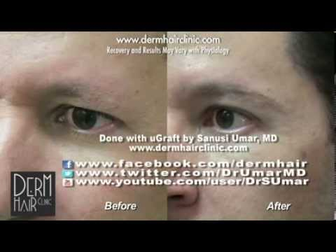 Eyebrow Transplant; Leg to Body hair transplant for eyebrow restoration - Before and after
