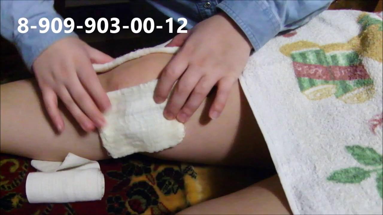 минск какая технология производства эндопротезов тазобедренных суставов используется комп
