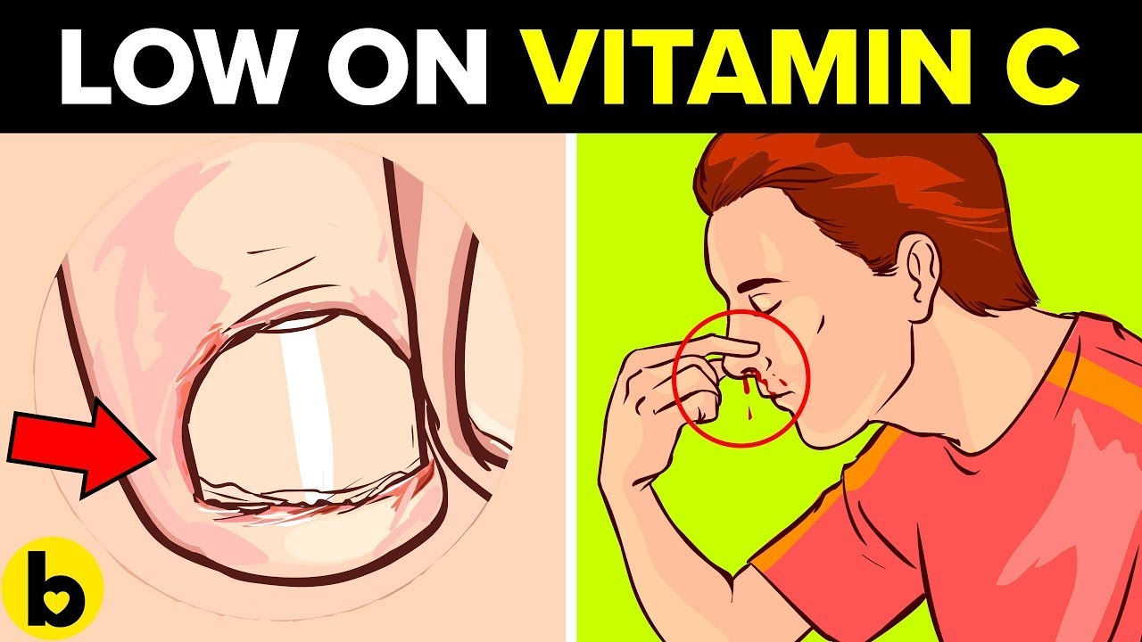9 Signs Your Body Needs More Vitamin C