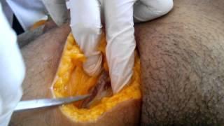 Arterial embalming