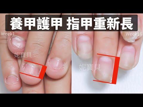 養甲 指甲重新長|護甲 從沒指甲到有指甲