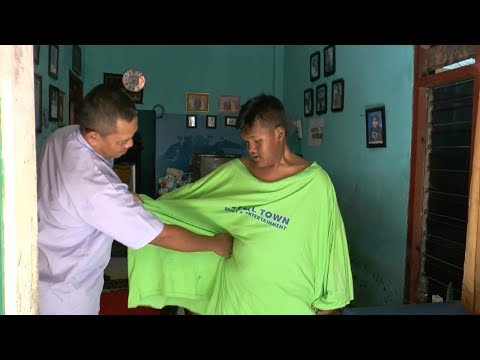 Fattest Indonesian Boy Loses 220lbs In Amazing Transformation