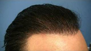 Hair Transplant by Dr Hasson - 3868 Grafts - 1 Session