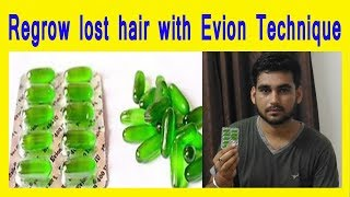 How to regrow lost hair with 2 capsules (Evion Technique) in hindi | Homemade Vitamin E Hair Oil