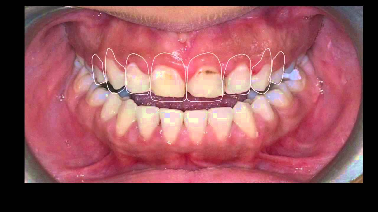 dsd e max veneers for upper four anterior teeth dsd e max veneers for upper four anterior teeth