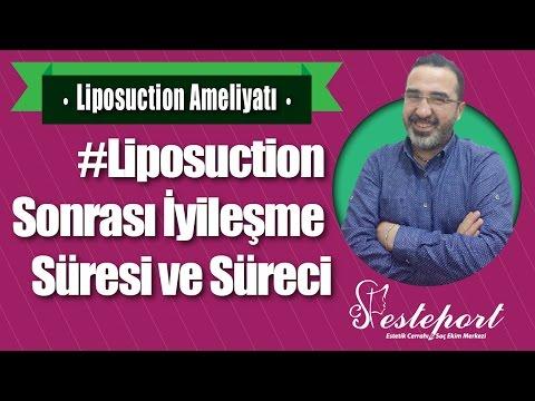 Liposuction Ameliyatı Sonrası Neler Yapılır ? & Dr Ali Mezdeği