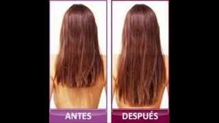 Diy Howto-Grow Hair/Como Prevenir la Calvicie, Crecer y Fortalecer el Cabello Thumbnail