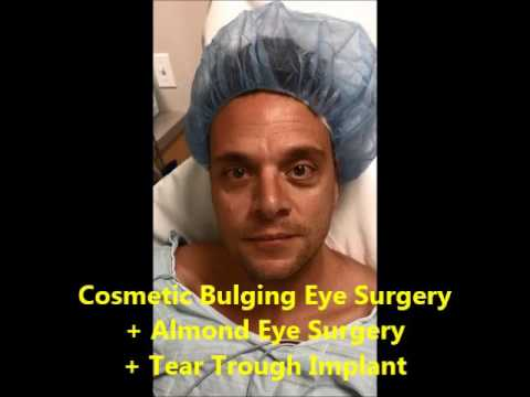 Tear Trough Treatment, Sunken Eye Treatment | Dr  Taban MD