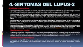 QUE ES EL LUPUS  SINTOMAS Y TRATAMIENTO-PARTE 1