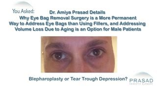 Why Fillers Became so Popular to Treat Eye Bags and Why Surgery is a Better Option